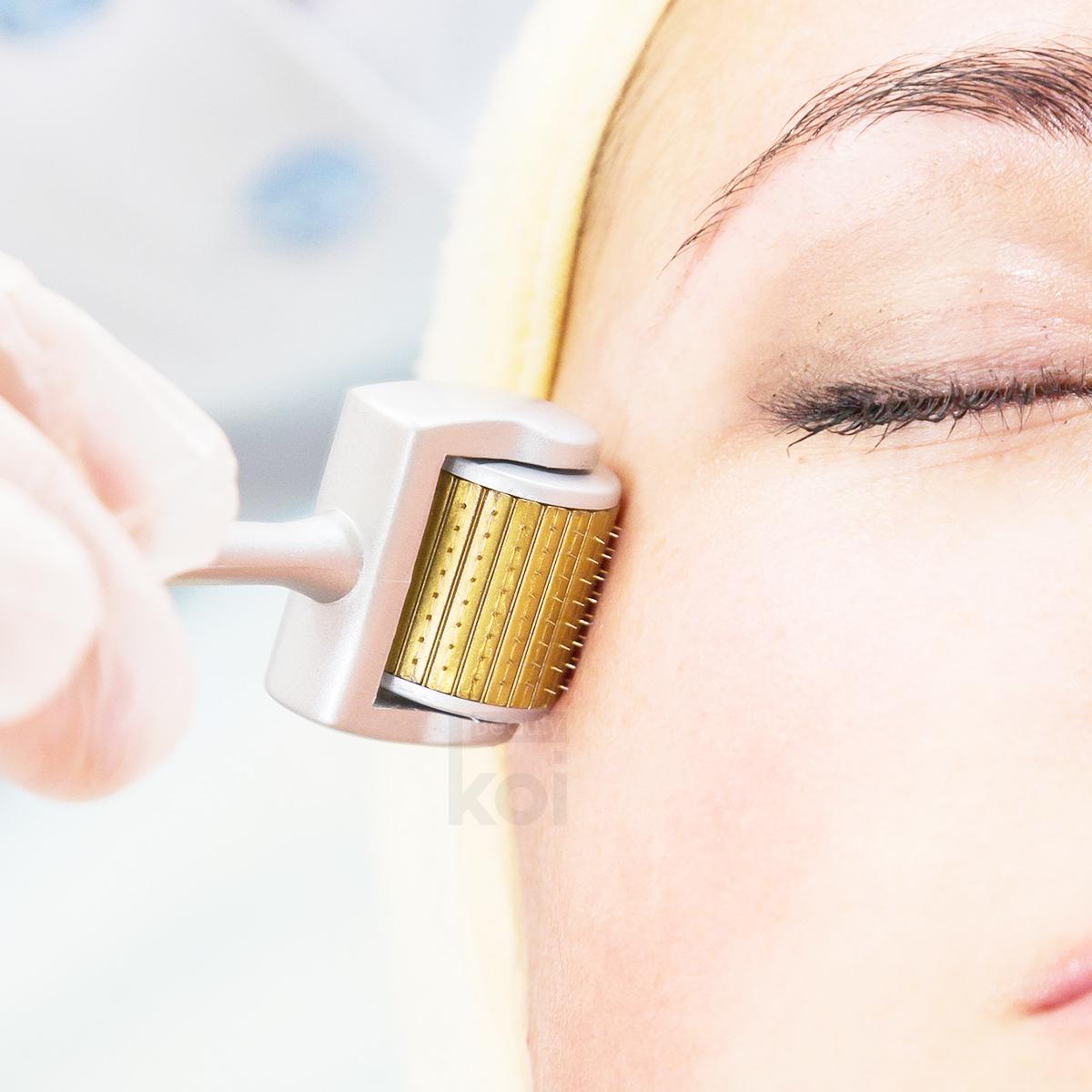 derma-roller-facial