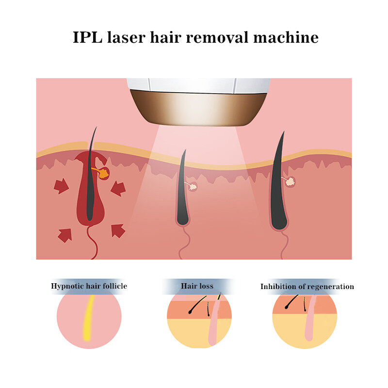 Home use IPL Laser Hair Removal