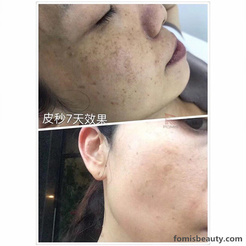 q switched nd yag laser hair removal