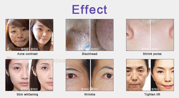 hydra dermabrasion facial