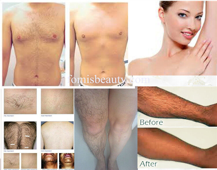best laser hair removal