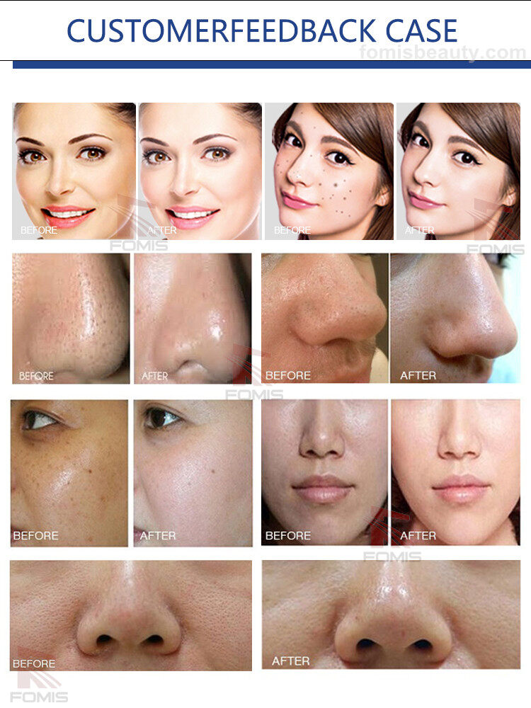 Deep cleansing hydro microdermabrasion facial oxygen jet peel machine