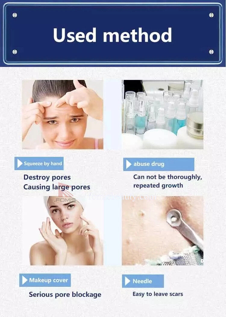 Acacia Acne Treatment Professional Acne Removal Beauty Equipment