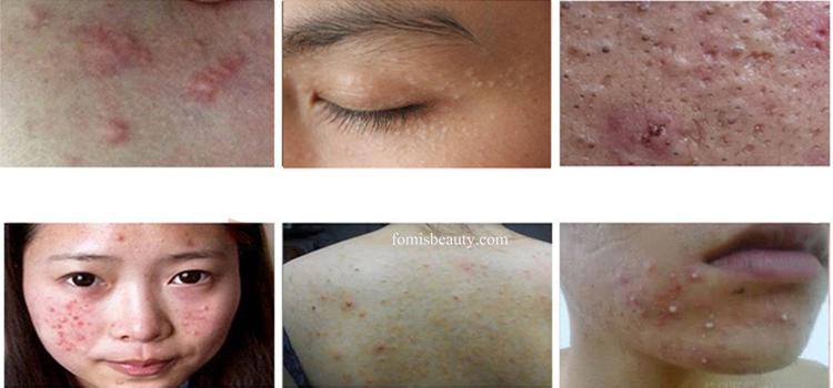 Acacia Acne Treatment